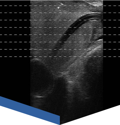 Echolaser - leczenie prostaty